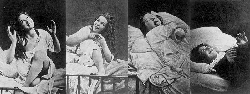 Dyssolucja psychonerwicowa – histeria, psychastenia, neurastenia